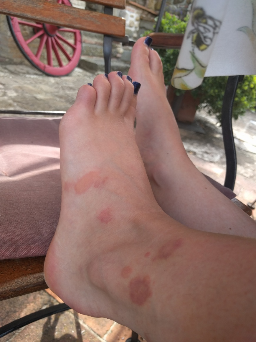 Mosquito Bites, Italy - Emma's Picture Postcards